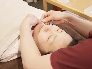美容鍼の施術写真