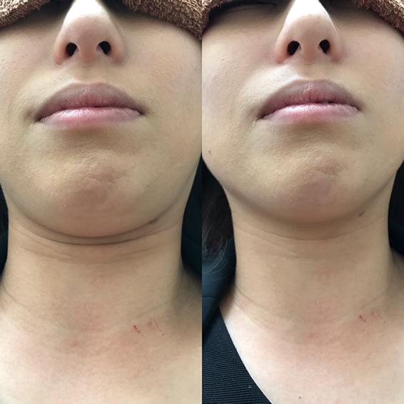美容鍼 30代 女性 Before After