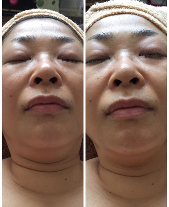 美容鍼 50代 女性 Before After